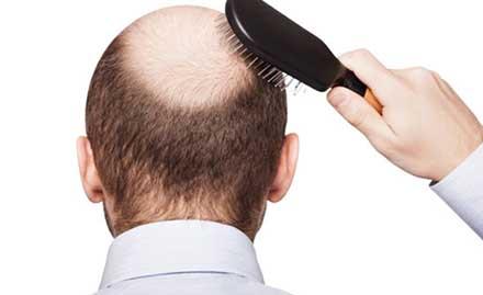 Follicle Hair Transplant Services